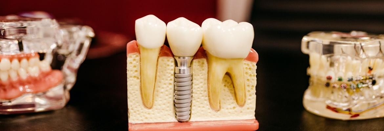 Dental Examples